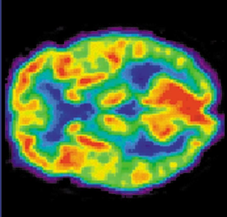 Tomographie du cerveau humain